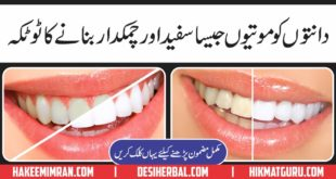 Teeth Whitening Ky Totkay