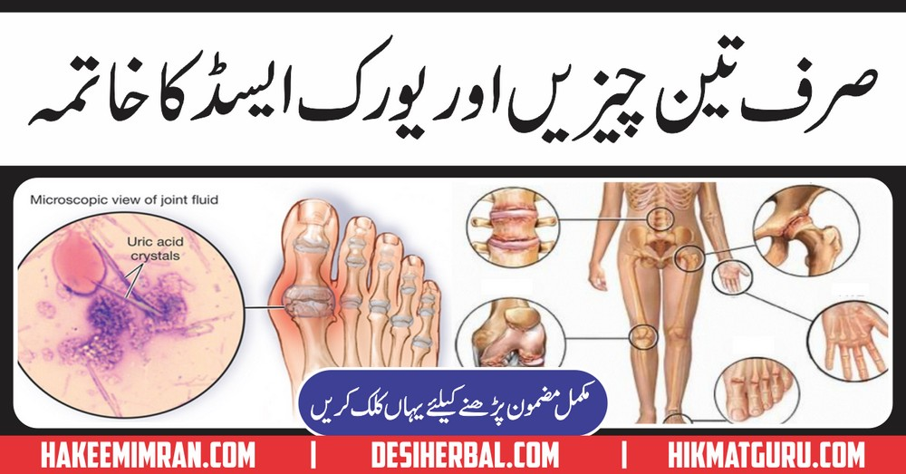 food low in uric acid list gout cures natural