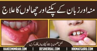 Monh aur Zuban (Mouth & Tongue) Ke Chalon ( Blisters) Ka Elaj