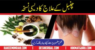 Psoriasis Causes & Treatment in Urdu Chambal Ka ilaj