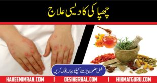 Urticaria Symptoms Causes Treatment Chapaki Ka Elaj