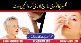 Nose Bleed Nakseer (epistaxis) Treatment Nakseer ka ilaj Urdu Totkay