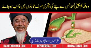 Pitte ki Pathri ka Ilaj Treatment of Gallbladder Stones in Urdu