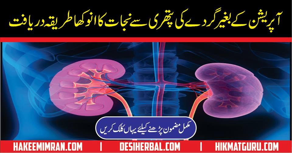 Gurde Ki Pathri Gurde Me Pathri Kidney Stones In Urdu