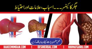 Hepatitis C Treatment In Pakistan Hepatitis C Symptoms in urdu