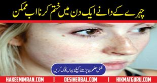 Pimples Treatment and Pimples Cure Keel Mahasay Aur Unka Ilaj