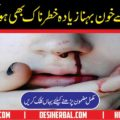 What is Logic and Solution of Nose Bleeds(Nakseer)