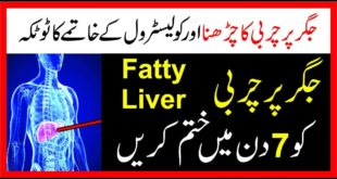 Fatty Liver Ka Desi ilaj|Fatty Liver Treatment in Urdu/Hindi|Fatty Liver And Poor Sex