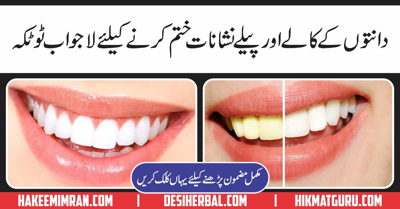 Dantton Ko safaid Yani Teeth Whitening Kay Totkay