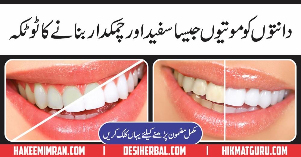 Teeth Whitening Ky Totkay