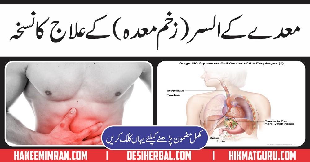 Ulcer Zakhm e Meda Stomach Ulcer Ka Desi Elaj