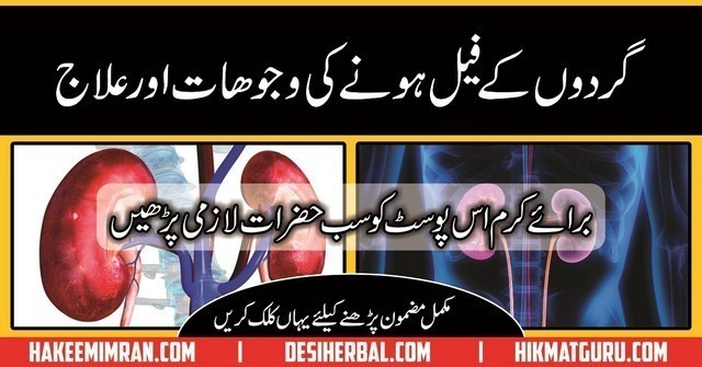 Gurdy Kay Fail Hone Ke Asbab,Alamat (Kidney Failure Causes Symptoms And Treatment) in urdu