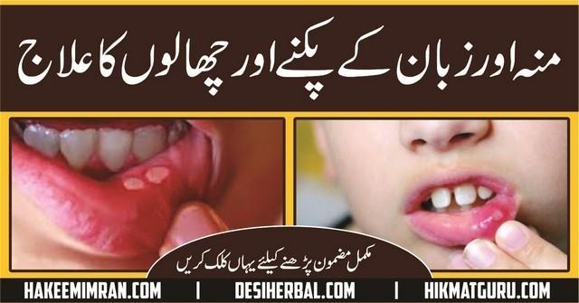 Monh aur Zuban (Mouth & Tongue) Ke Chalon ( Blisters) Ka Elaj