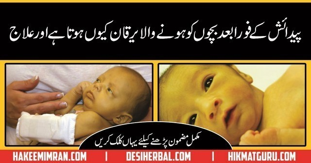 Nozaida Bachoon Ka Yarkan (Newborn Baby Jaundice Treatment)in urdu