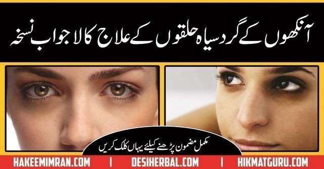Tips For Dark Circles Under Eyes Home Remedies in Urdu