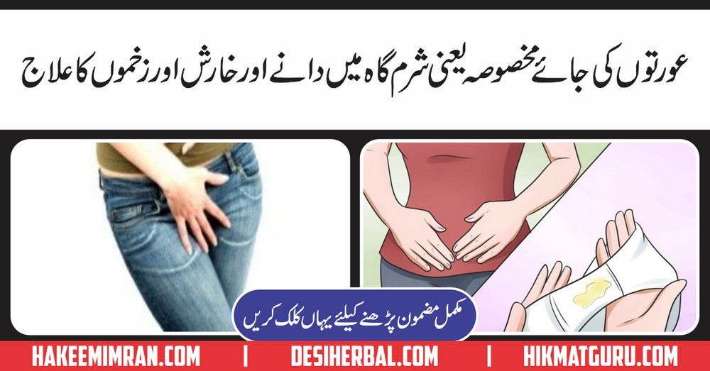 Vaginal itching (Jai Makhsoosa Ki Kharish) Ka Elaj