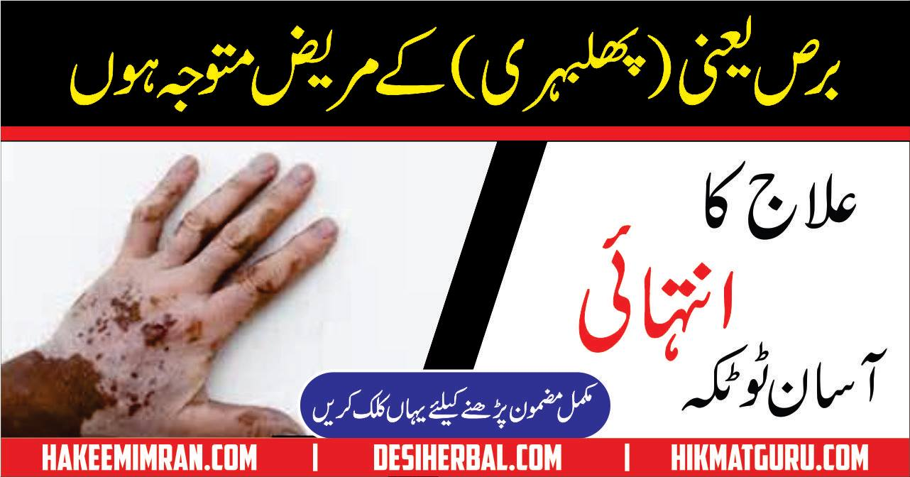 Leucoderma ( Vitiligo ) ( phulbehri ) Ka Desi Treatment (2)