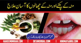 Mouth And Tongue Blisters Cure Moun Aur Zaban Ky Chale Ka ilaj (2)