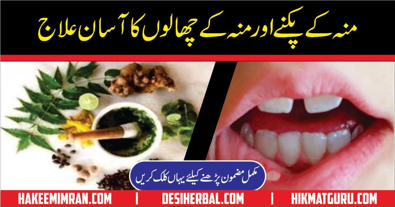 Mouth And Tongue Blisters Cure Moun Aur Zaban Ky Chale Ka ilaj (2)