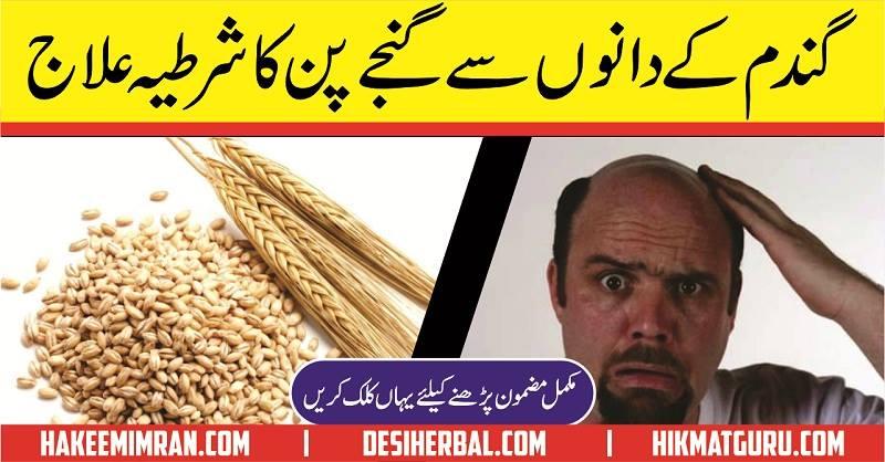 Sar Kay Balon Ka Ganj Pan Hair Loss And Balding Khatam Kerna Hai 1