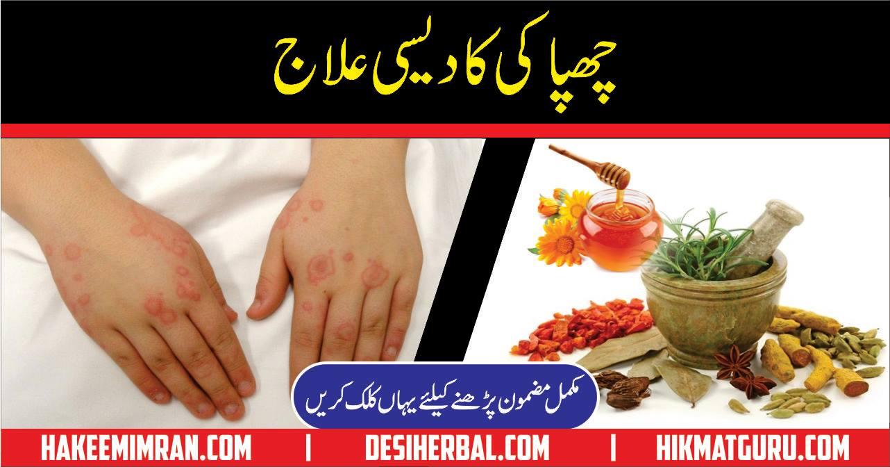 Urticaria Symptoms Causes Treatment Chapaki Ka Elaj