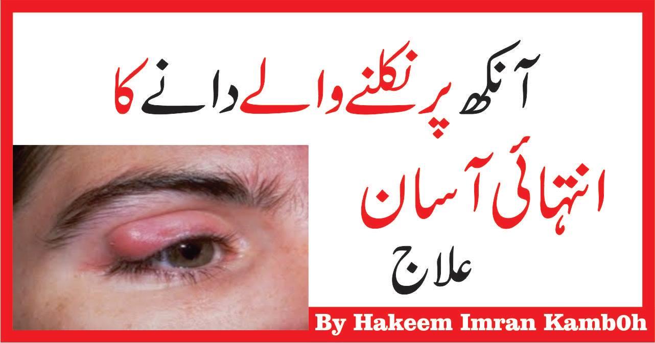 Aankhon Ki Sujan Ka Ilaj Tips for Eye Swelling in Urdu Hindi