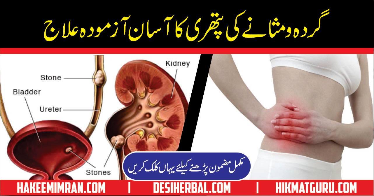 Gurday ki Pathri Desi Totkay in Urdu for Kidney Stone