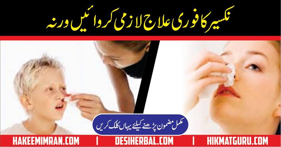 Nose Bleed Nakseer (epistaxis) Treatment Nakseer ka ilaj Urdu Totkay