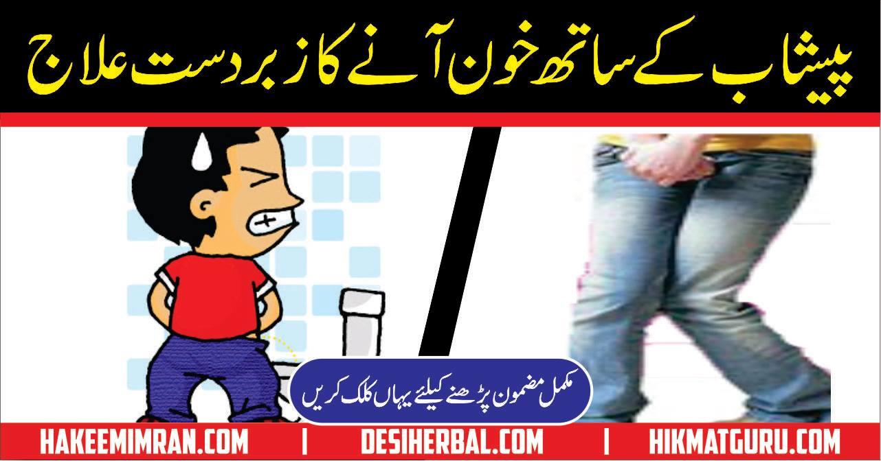 Peshab Mein Khoon ka Ilaj Hakeemimran.com