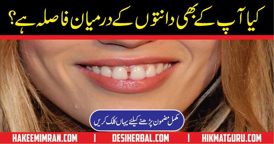Gaps Between Teeth Causes and Solutions in Urdu Hindi
