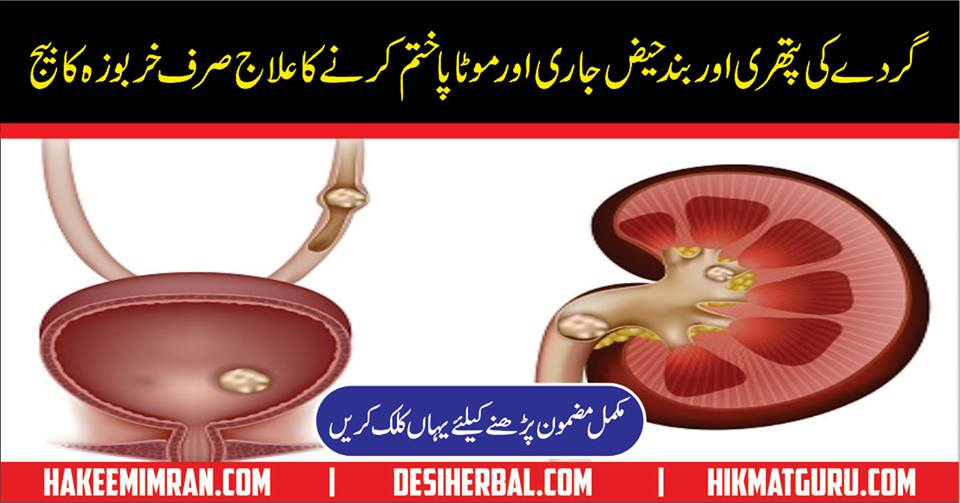 Gurday Ki Pathri Ka 100 % Shafi Elaj Remove Kidney Stone in urdu