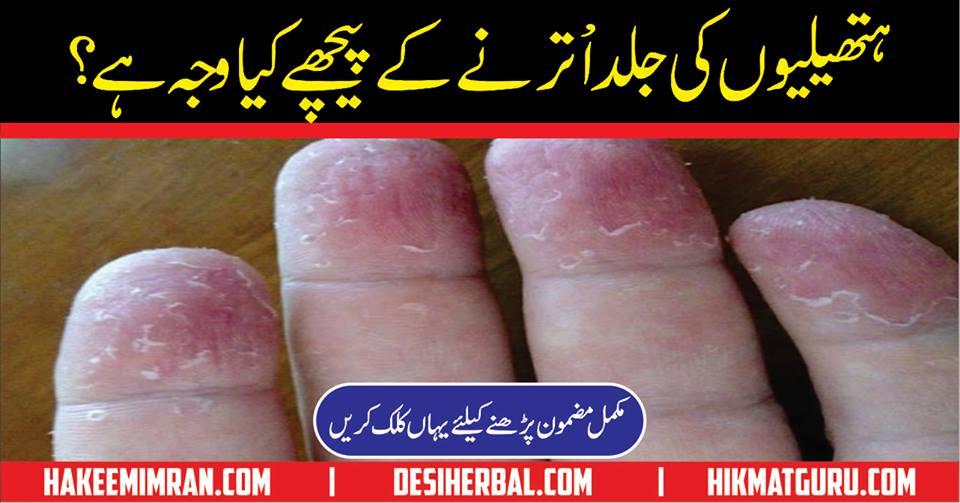 Hands Ki Skin Utarne Ki Kiya Wajah Hy