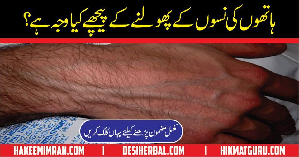What Causes Bulging Veins in Teens' HandsHath Ki Nas Pholny Ki Wajha